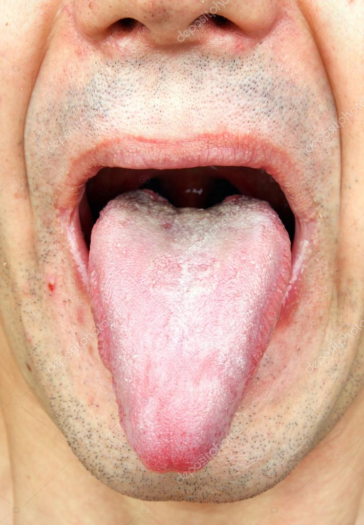 pictures of mouth and tongue disease entusacom - 711×1023