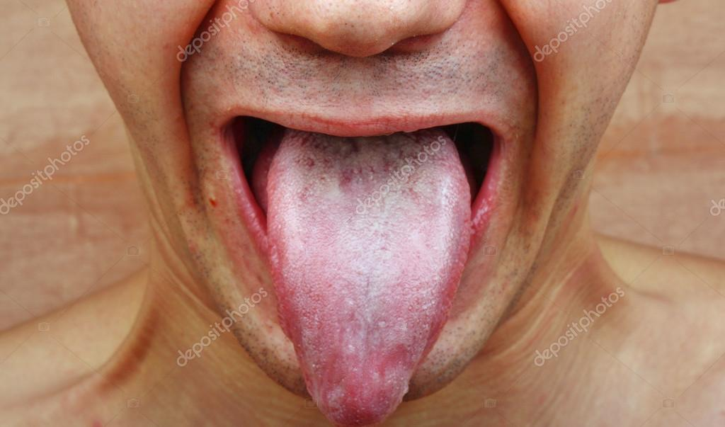 pictures of mouth and tongue disease entusacom - 1024×603
