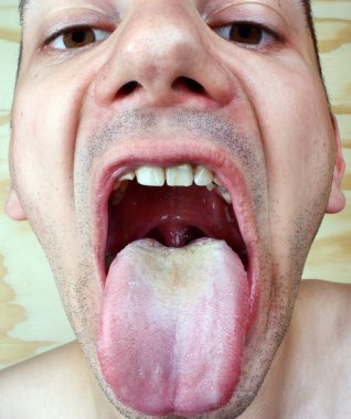 Bacterial infection disease tongue