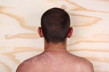 Sunburned back body