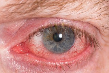 Red irritated eye