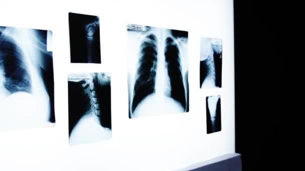 Arzt untersucht Röntgenbild