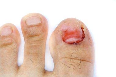 finger toe injured to lose nail