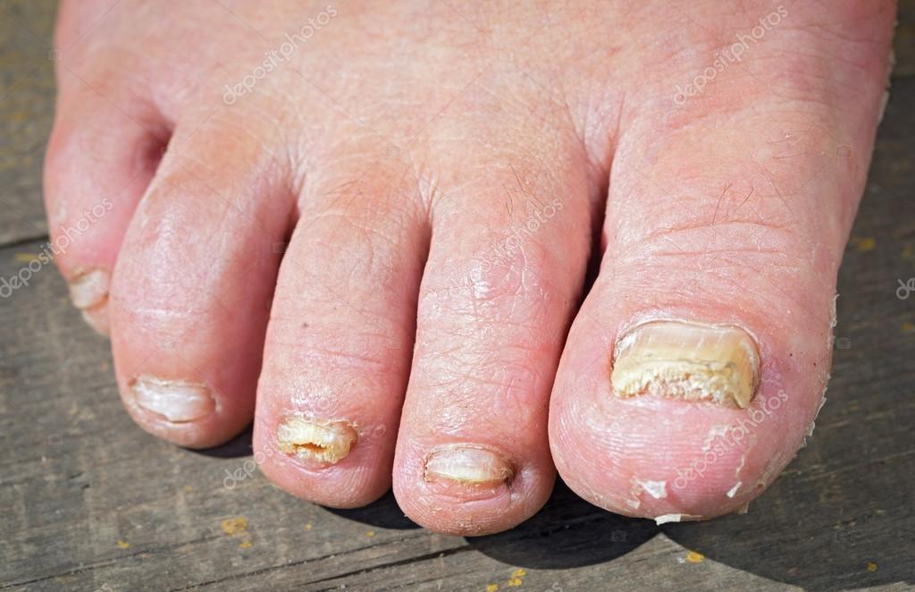 Infección de hongo en las uñas del pie del hombre — Fotos de Stock ...