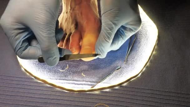 Podologie léčby nehtů. Podiatr léčí nehty. Doktor odstraňuje mozoly, kukuřice a ošetřuje zarostlé nehty. Hardwarová manikúra. Zdraví, koncepce péče o tělo.