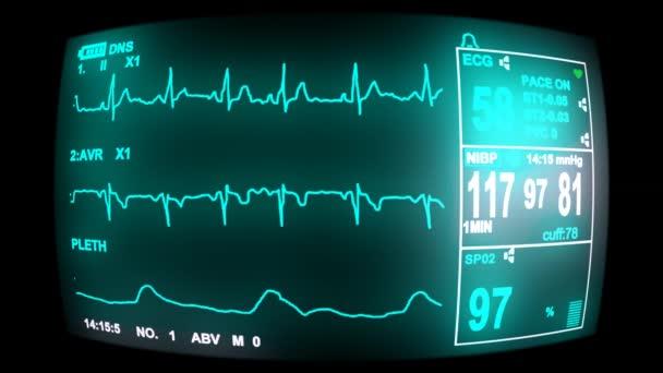 4 k EKG monitor képernyő