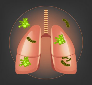 Lungs with germs and bacteria. Vector illustration