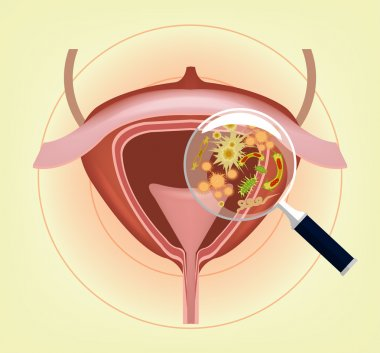 Human bladder with bacteria, germs and magnifier. Vector illustration