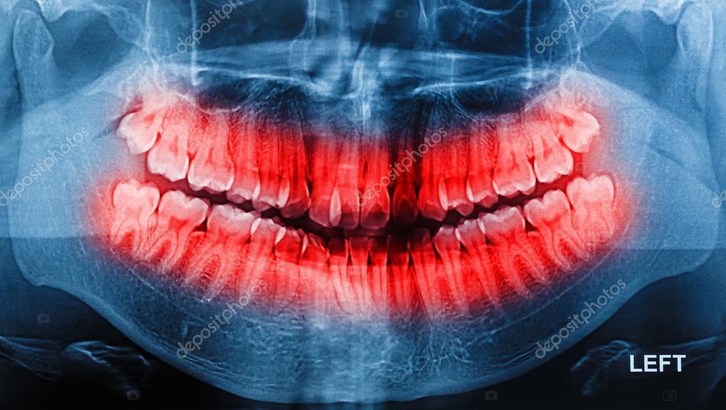 Exploración de los dientes humanos de la radiografía de película ...
