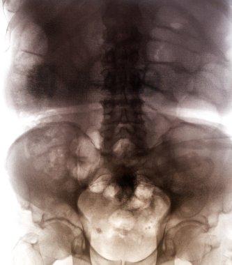 X-Ray scan of human bones
