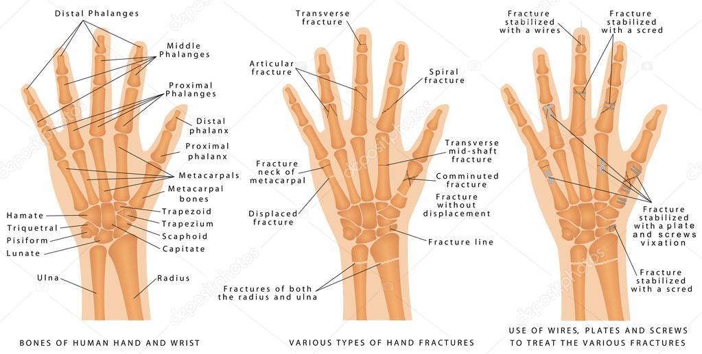 Verschiedene Arten von Frakturen der hand — Stockvektor © anutuno ...