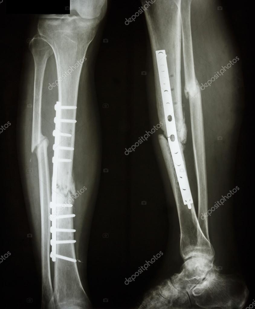 Fotos de fractura de tibia y perone 43