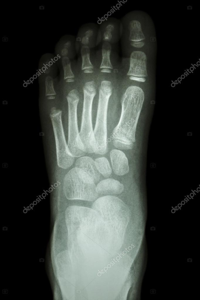 x-ray Fuß LD: normale Kind Fuß zeigen — Stockfoto © stockdevil_666 ...