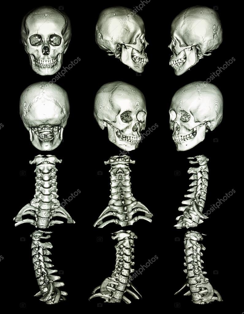 Tomografía computarizada de cráneo — Fotos de Stock © stockdevil_666 ...