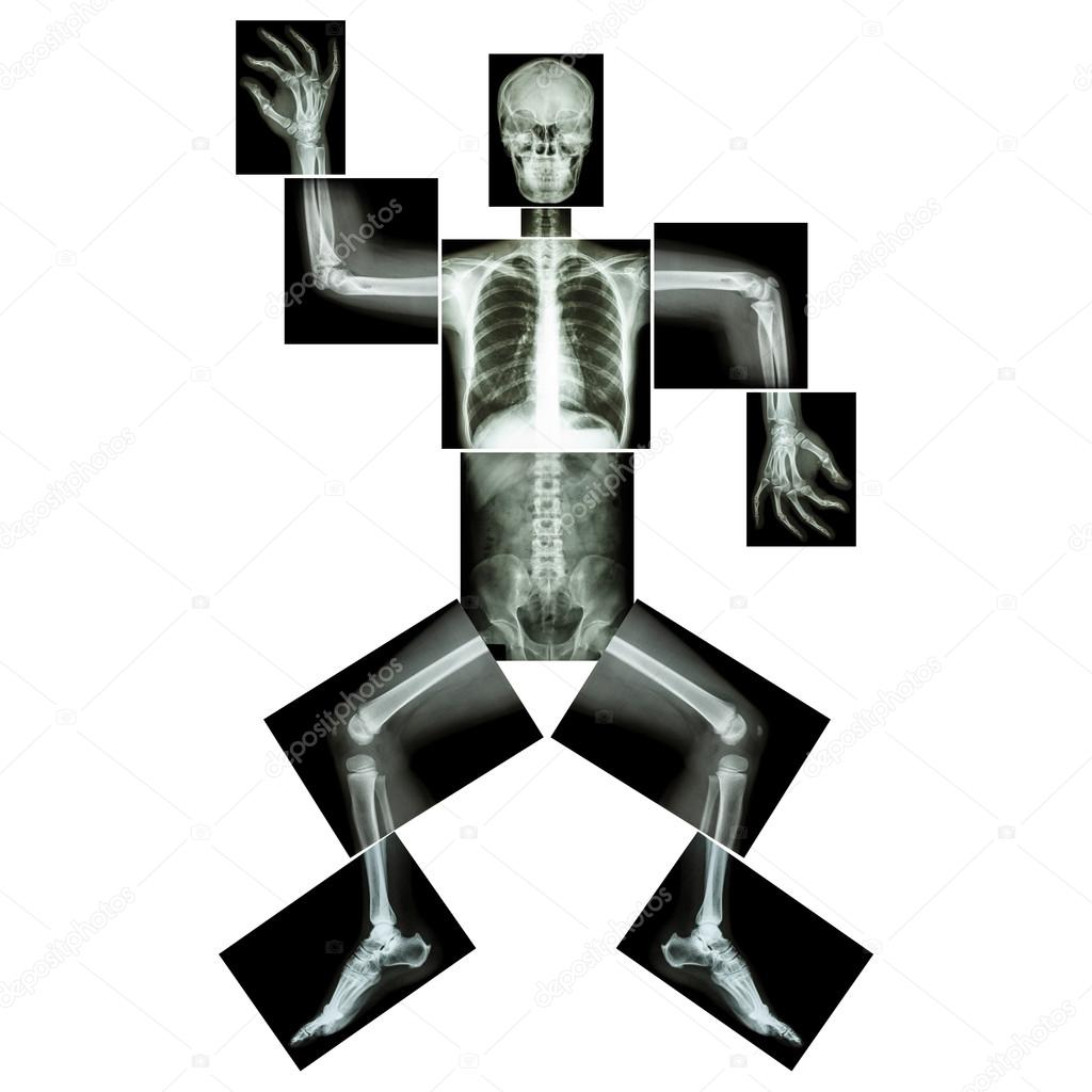 Aerobic Dance(human Bone Is Dancing),(Whole Body X-ray