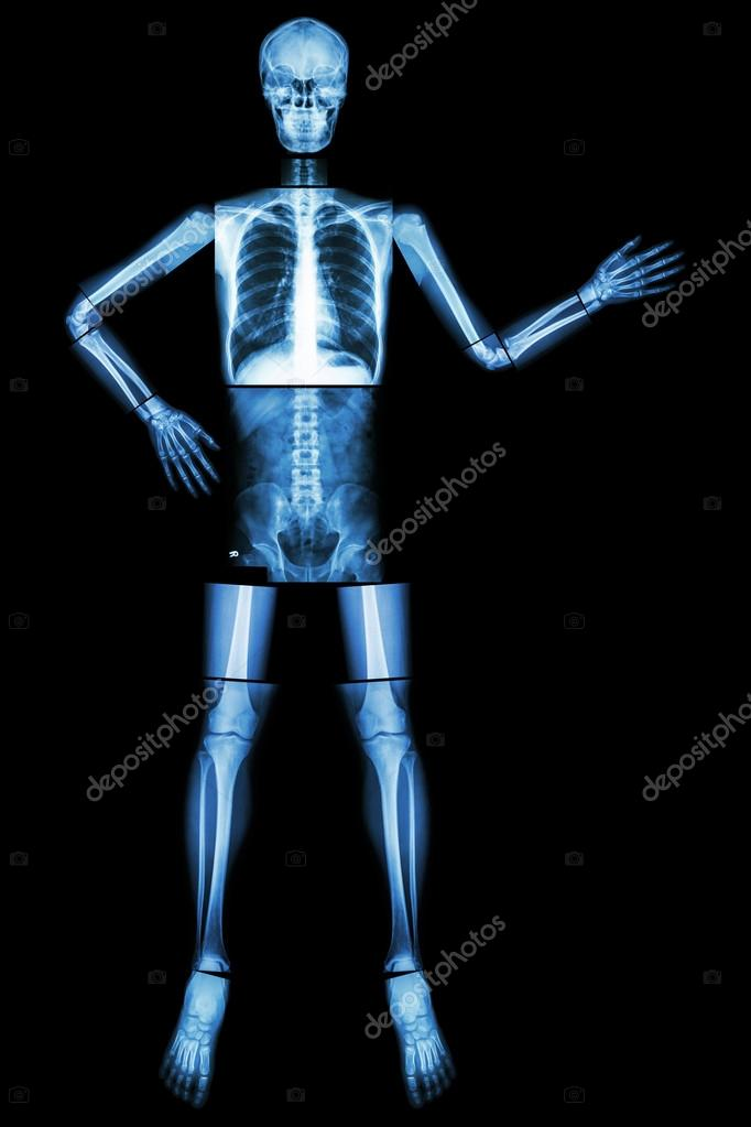 Human skeleton present something whole body head skull neck spine human skeleton present something whole body head skull neck spine shoulder arm elbow forearm wrist hand finger chest thorax heart lung abdomen back ccuart Choice Image