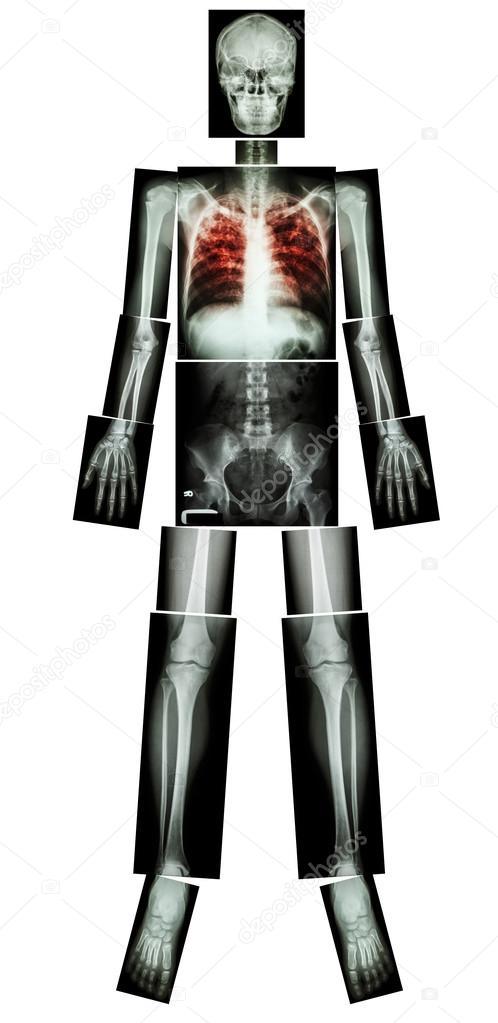 pulmonary tuberculosis tb x ray whole body head skull neck spine