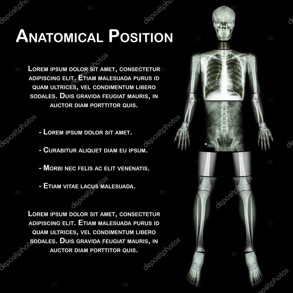 Anatomical Position X Ray Whole Body Head Neck Thorax Heart