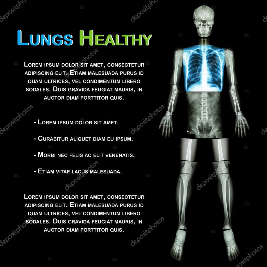 Lung healthy (X-ray Whole body : skull head neck spine shoulder ...