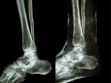 Film x-ray fracture shaft of fibular(leg's bone) with cast(right image)