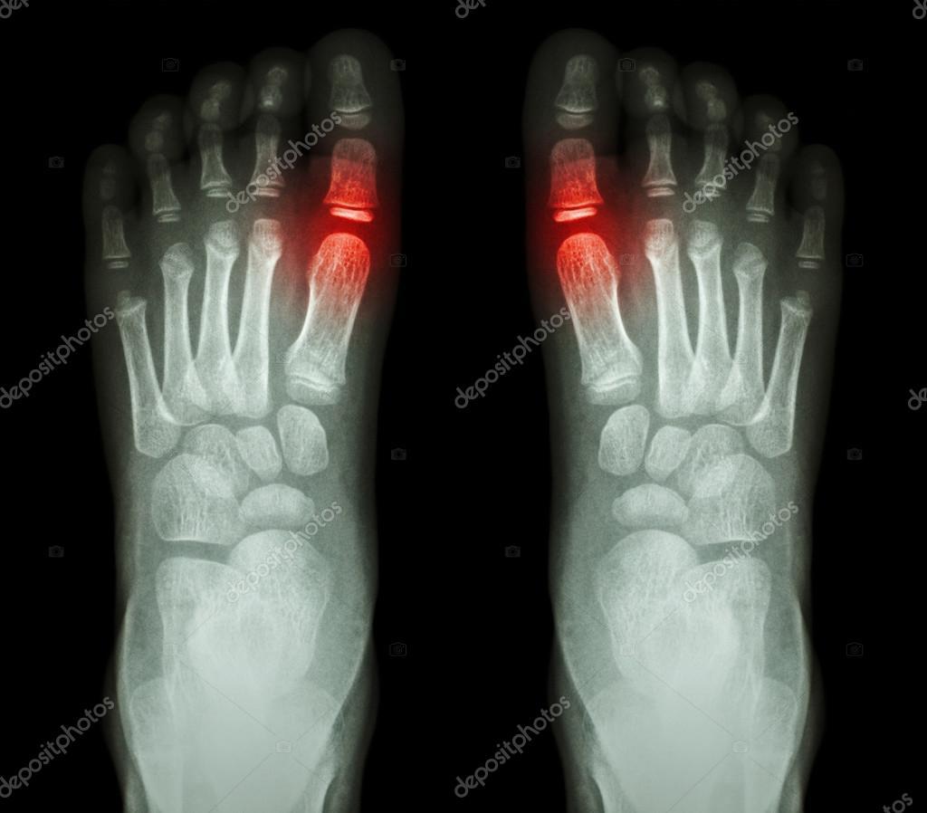 Quot Rheumatoid Arthritis Gouty Arthritis Quot X Ray Child S