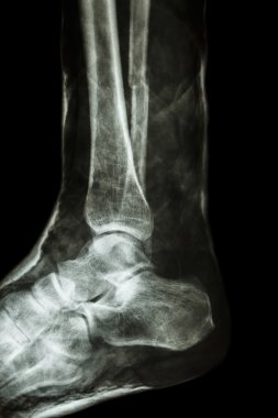 fracture shaft of fibula(leg's bone) with cast