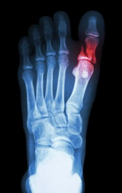 fracture proximal phalange at first toe