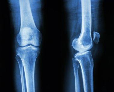 Normal human's knee