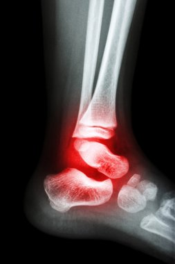 Film x-ray child's ankle and arthritis at ankle (Rheumatoid)