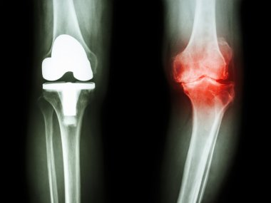film x-ray knee of osteoarthritis knee patient and artificial joint