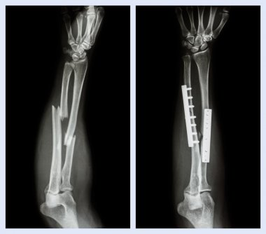 Fracture both bone of forearm. It was operated and internal fixed with plate and screw (Left image : before operation , Right image : after operation)