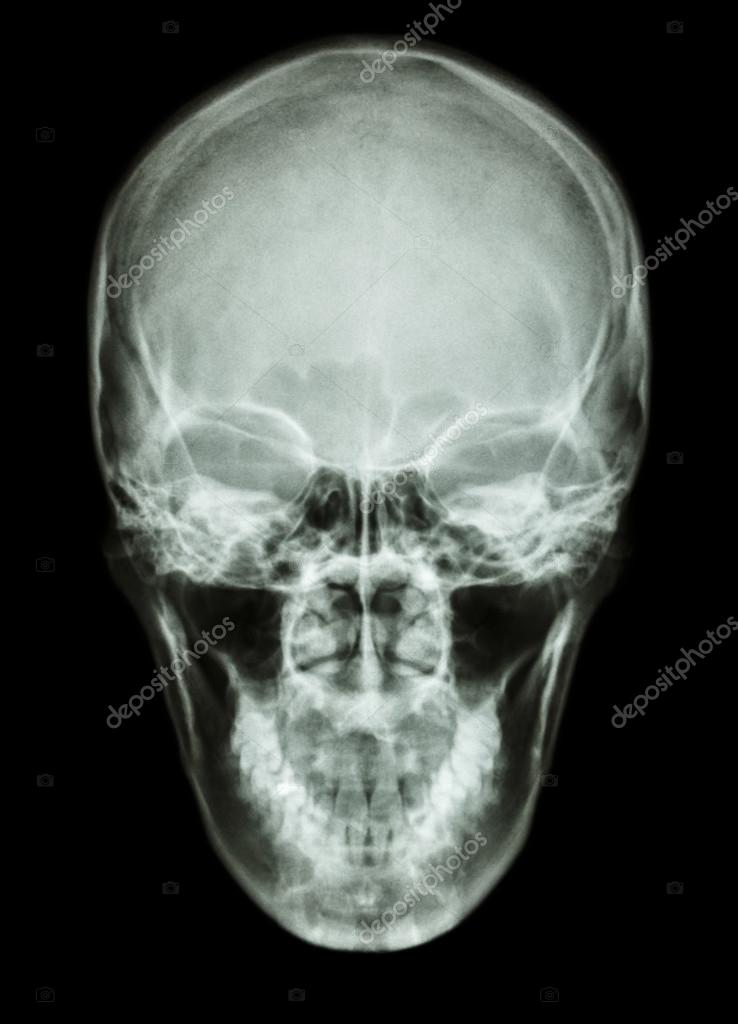 X-ray asian skull (Thai people)