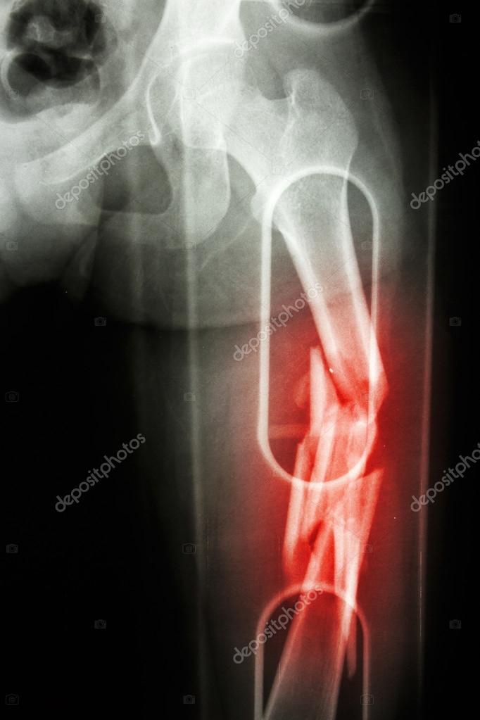 X-ray Filmshow Zerkleinern Welle der Fraktur des Femurs ...