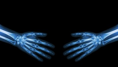 Shake hands .  X-ray normal human hands   ( blank area at upper side )