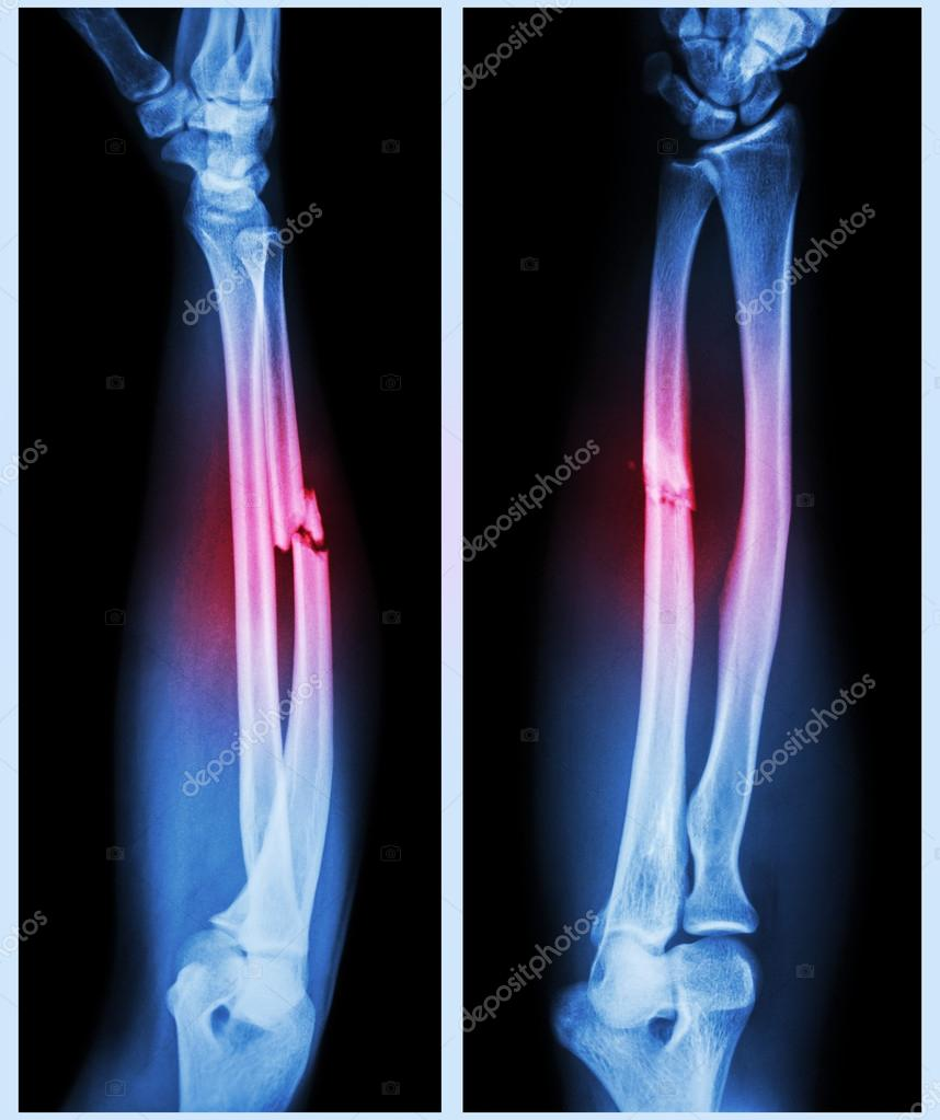 Comminuted fracture shaft of ulnar bone — Stock Photo ...