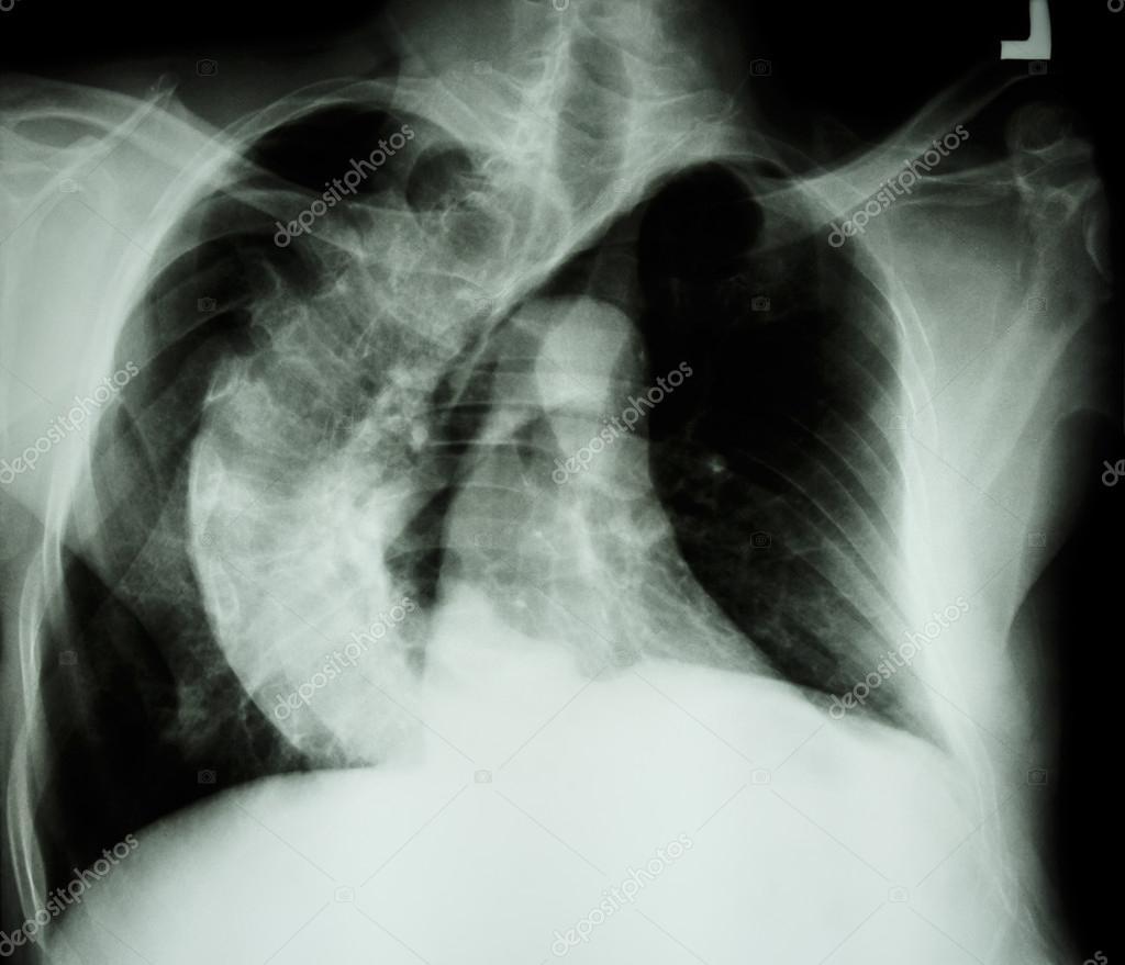 Skoliose (krummen Wirbelsäule) x-ray Brust von alten Menschen mit ...