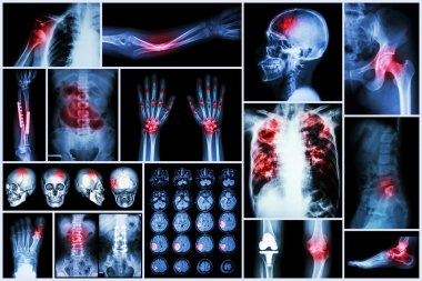 X-ray multiple disease (Stroke (cerebrovascular accident) : cva ,Pulmonary tuberculosis ,Bone fracture ,Shoulder dislocation ,Gout ,Rheumatoid arthritis ,Spondylosis ,Osteoarthritis ,Bowel obstruction