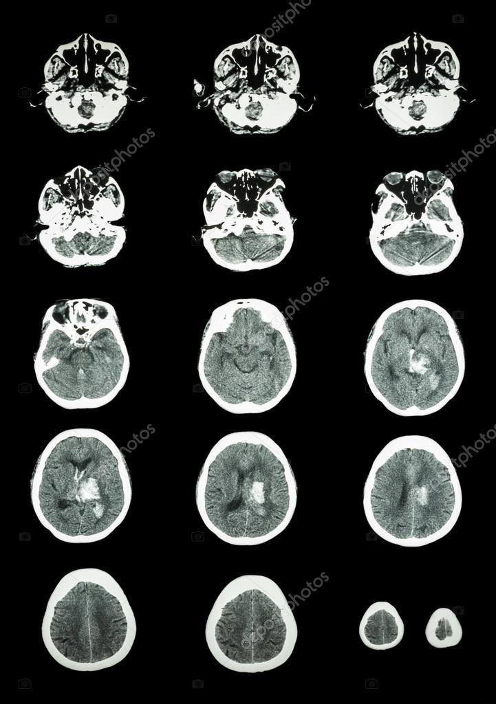 Hämorrhagischer Schlaganfall. CT-Scan (Computertomographie) des ...