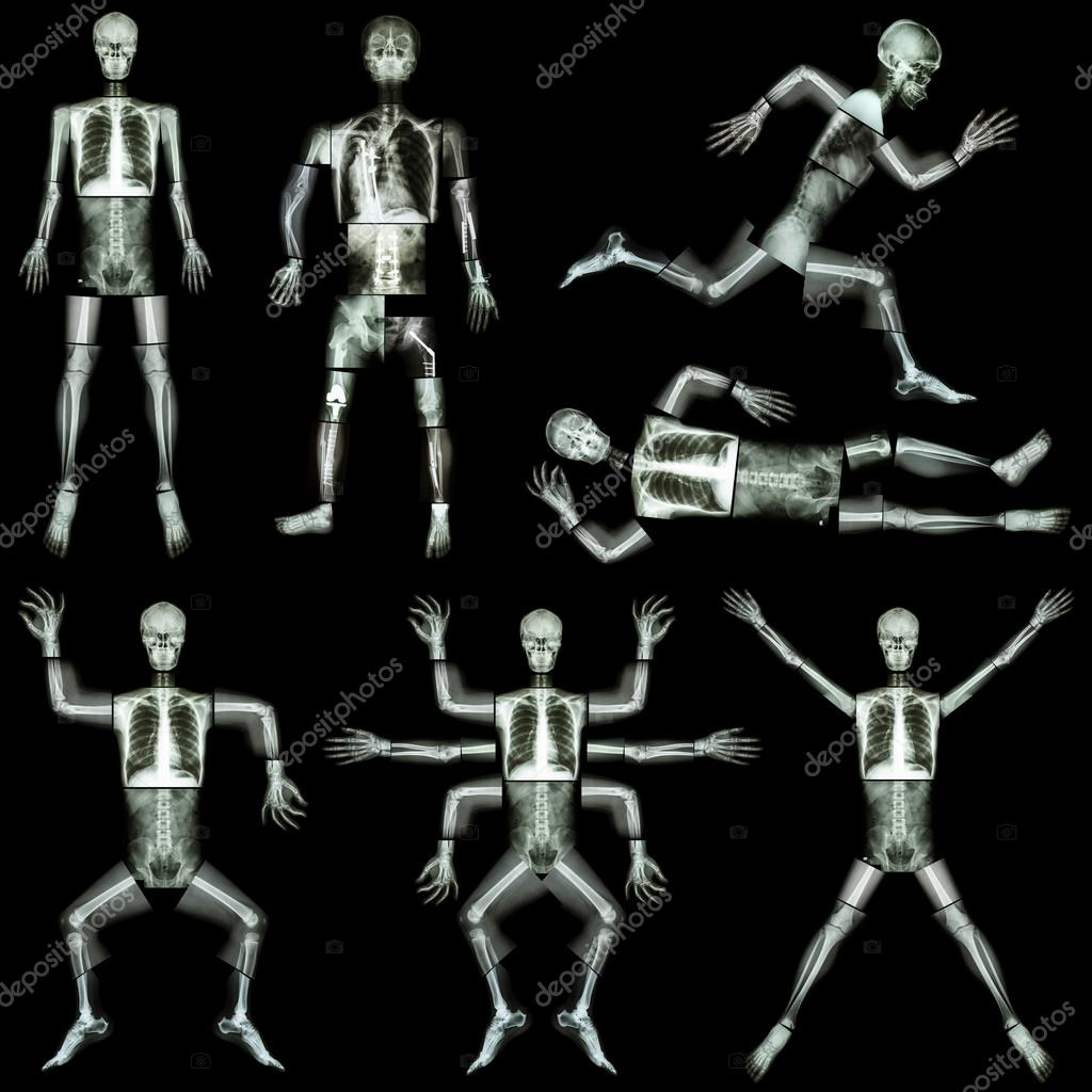 Collection of human skeleton x ray whole body skull head face collection of human skeleton x ray whole body skull head face neck spine shoulder arm forearm elbow wrist hand finger thorax lung heart abdomen pelvis ccuart Images