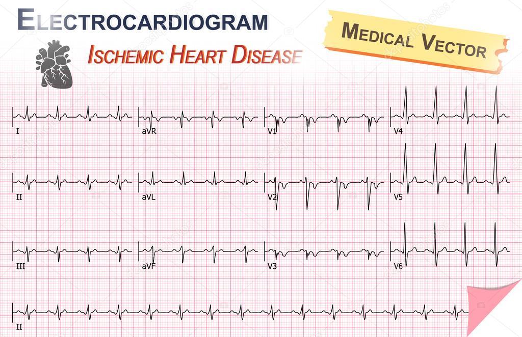 Elektrokardiogramm (EKG, Ekg) der ischämischen Herzkrankheit ...