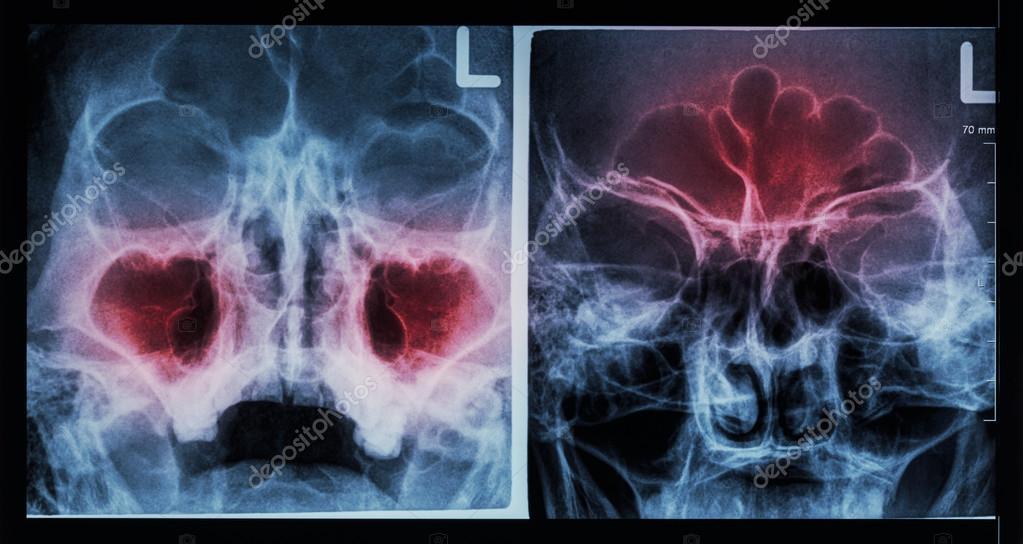 Film X-ray paranasal sinus : show sinusitis at maxillary sinus ...