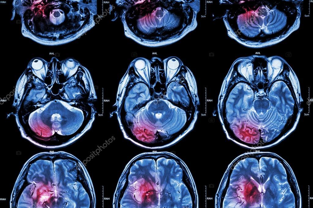 Film MRI ( Magnetic resonance imaging ) of brain ( stroke , brain ...