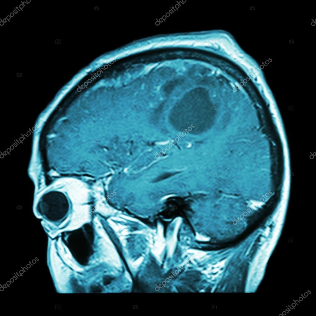 Film MRI of brain with brain tumor ( Sagittal plane , side view ...