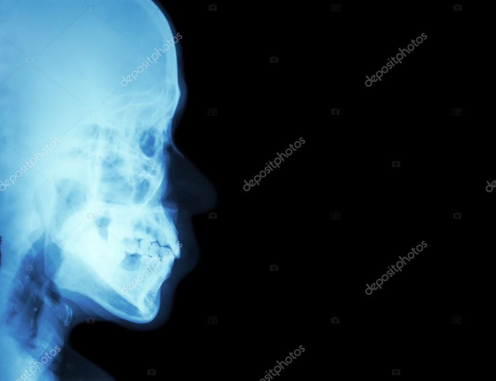 Film Röntgen lateral Nasenbein (Seitenansicht des Schädels) und ...