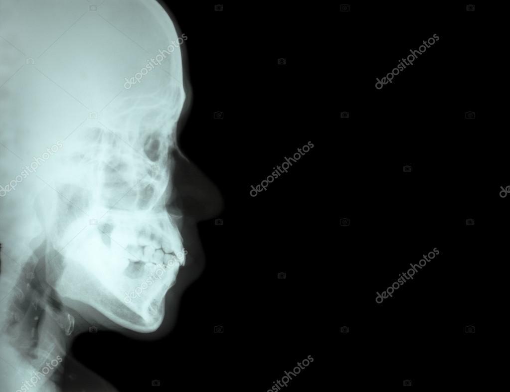 Hueso nasal de la lateral del cine radiografía (vista lateral del ...