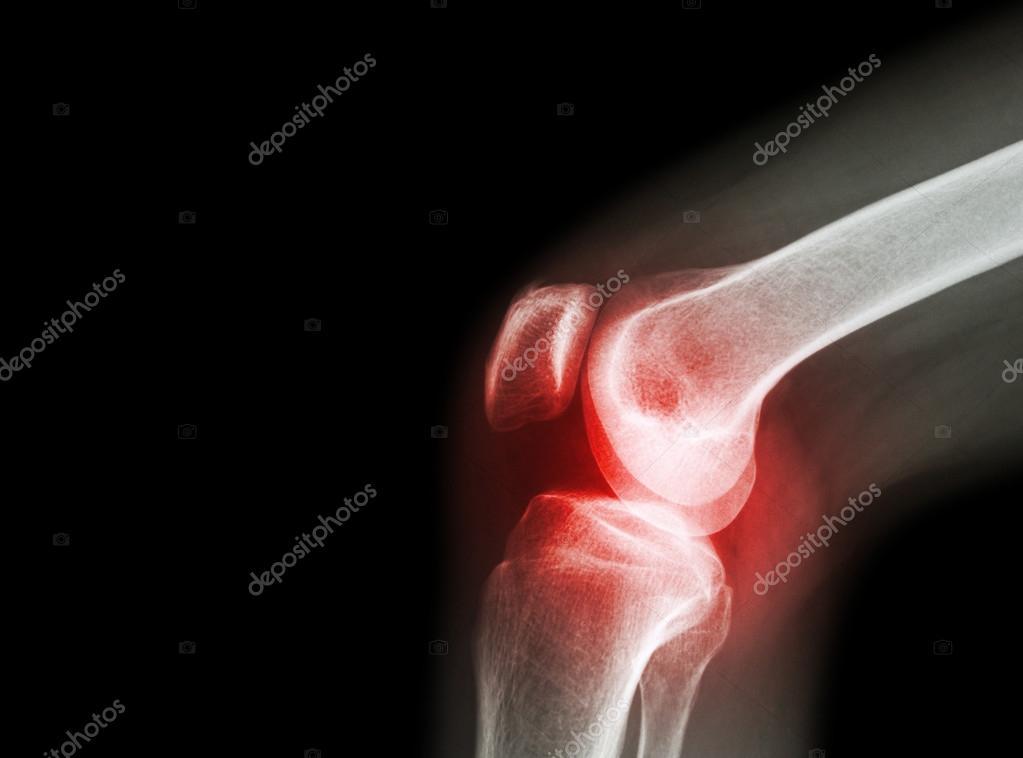 térd radiográfia artrózisban 3 fokú térdízület