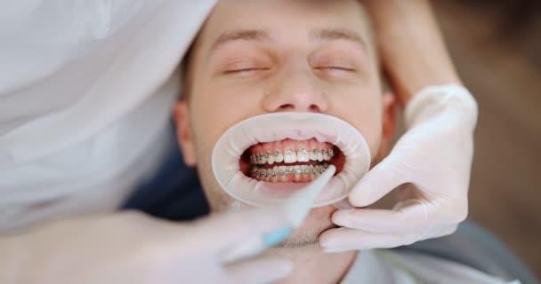 Pacient se zubními rovnátky během ortodontické léčby