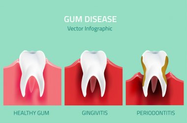 Gum disease stages. Teeth infographic