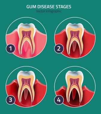 Gum disease vector