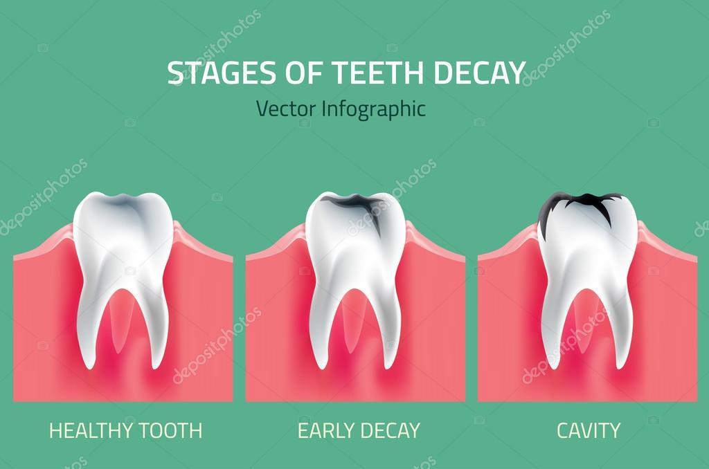 Zähne-Vektor-Anatomie — Stockvektor © annyart #112186092